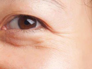 Cara Menghilangkan Kantung Mata Dengan Cepat
